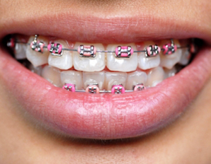 Brace yourself not all braces mouthguards are created equally solutioingenieria Image collections