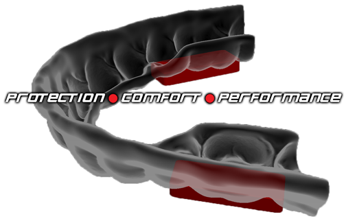 comfortable mouthguard