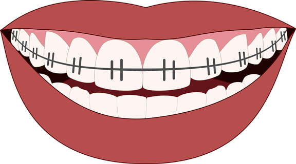 Braces Mouthguards: There Is A Comfortable Option!